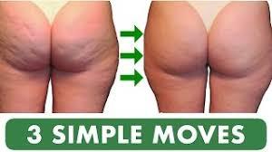 Jak poradzić sobie z cellulitem w 3 krokach?